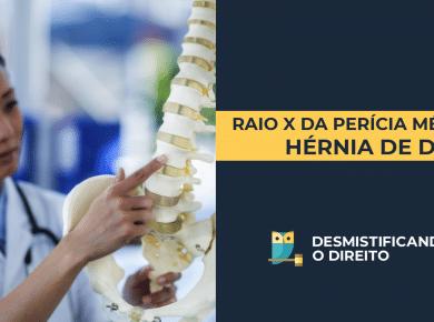 THUMB HERNIA 390x290 - Raio-x da Perícia Médica: Hérnia de Disco