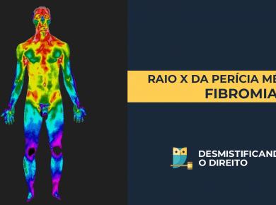 THUMB PROVISÓRIA 390x290 - Raio-X da Perícia Médica: Fibromialgia
