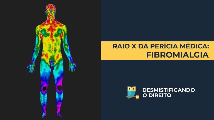 Raio-X da Perícia Médica: Fibromialgia